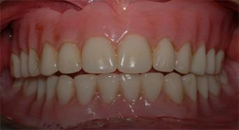 Denture Soft Liners
