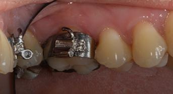 Orthodontic Band Selection and Placement