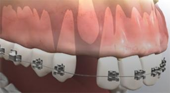 Periodontal Surgery For Impacted Canine Exposure