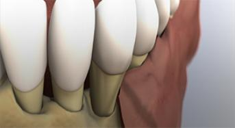 Initial Periodontal Therapy